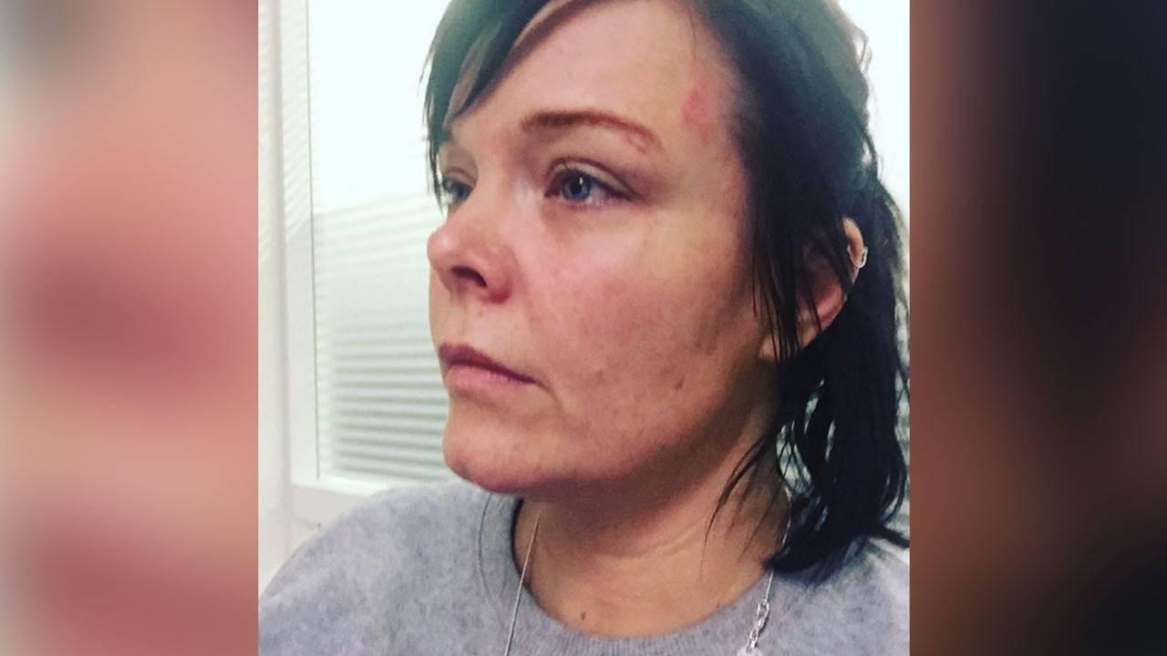 Anette Olzon zmlácená jak žito: bývalou zpěvačku Nightwish napadla narkomanka