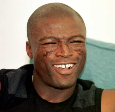 Seal and facial scar